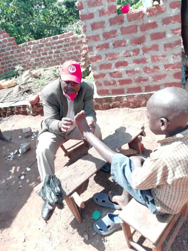 Arzt entfernt Parasiten aus der Haut des Jungen